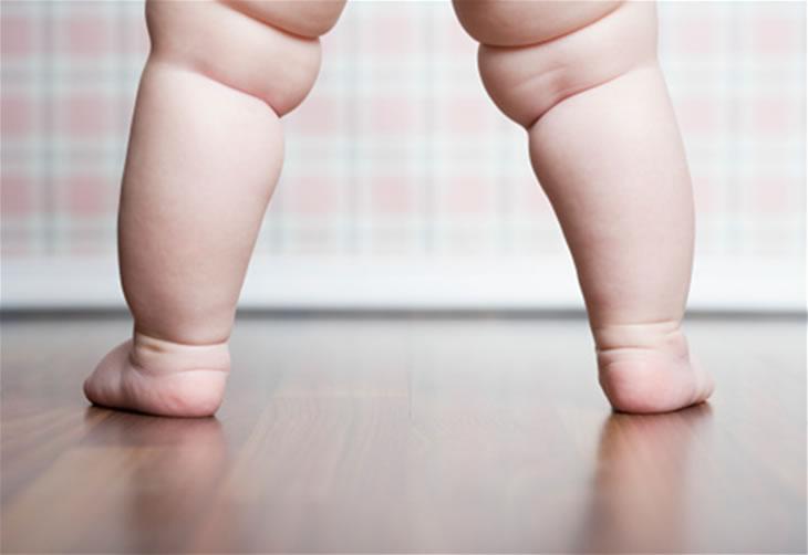 Ученые установили, что от ожирения уже страдает треть жителей планеты